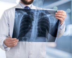 肺の病気が持つスピリチュアル的な意味合い